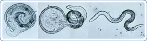 CDC website, Parasites - Toxocariasis (also known as Roundworm Infection)